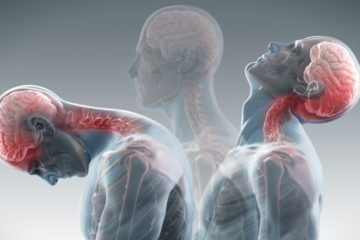 auto accident chiropractor treating whiplash injuries in Charlotte and Pineville