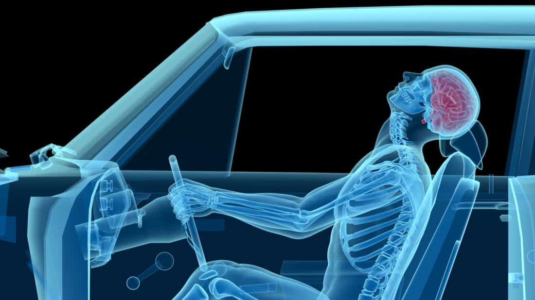Car Accident Chiropractors