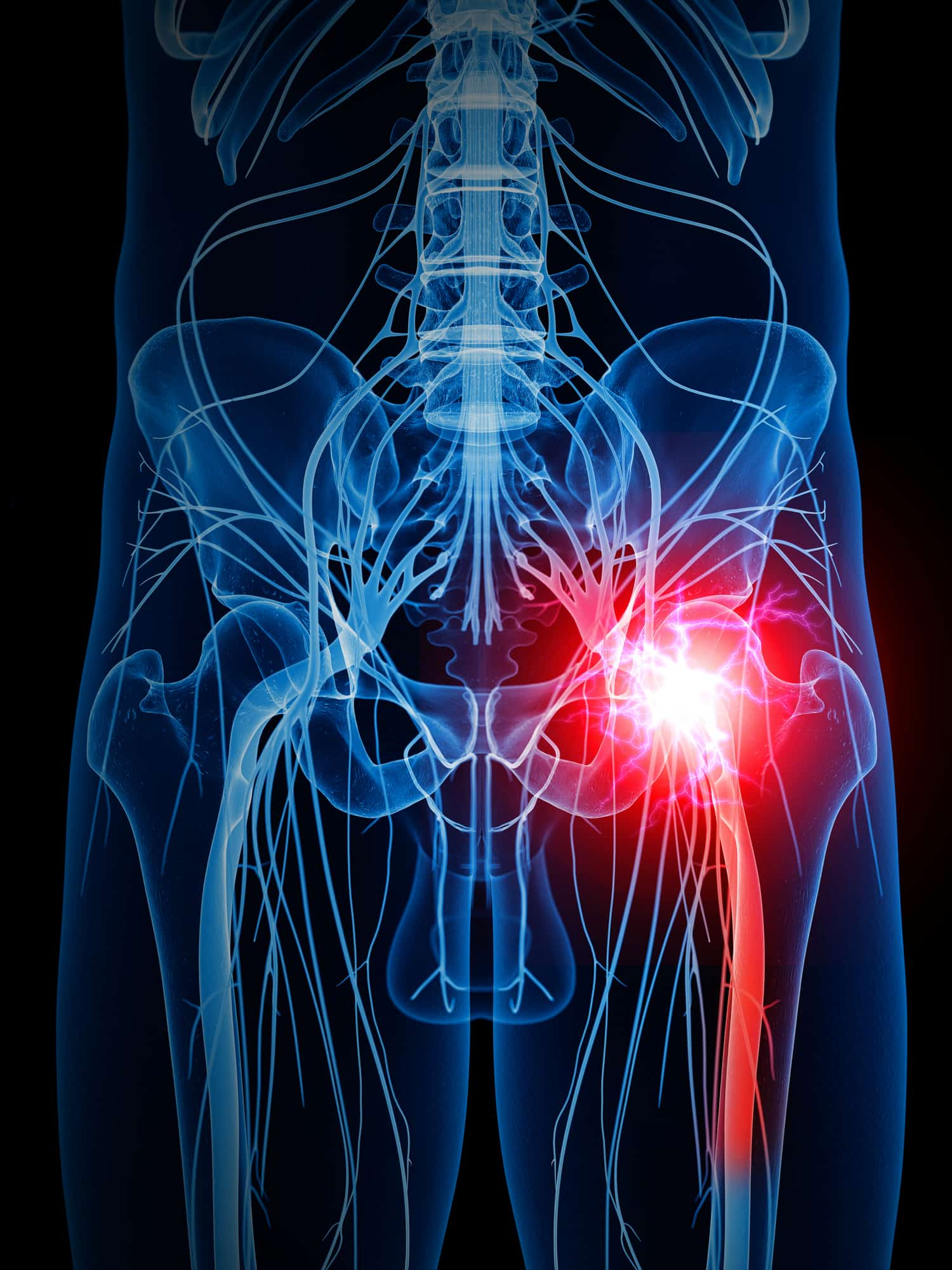 4 Questions to Ask in Diagnosing Sciatica – What to Know