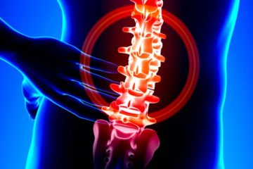 low back pain relief by a Charlotte NC chiropractor