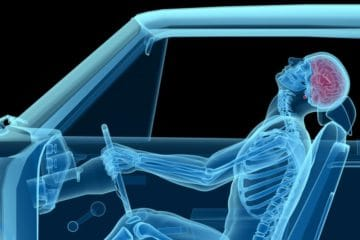 auto accident chiropractor Charlotte NC