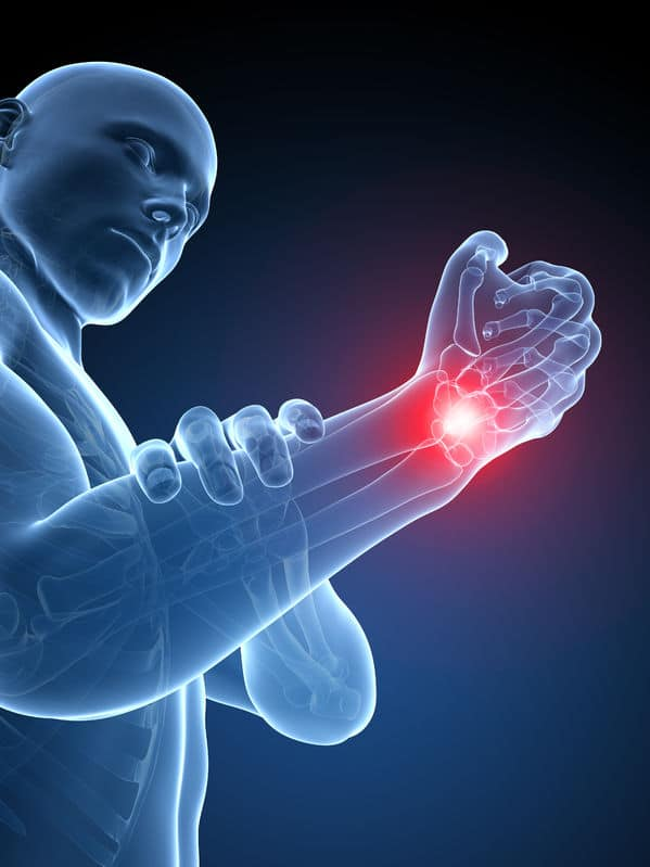 Treating Carpal Tunnel Caused by an Auto Accident – What to Know