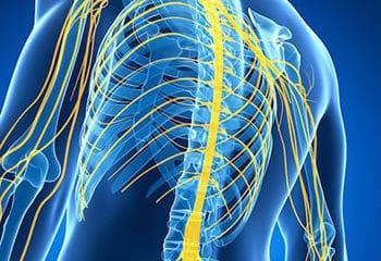 pinched nerves producing pain in the arms and legs with numbness and tingling