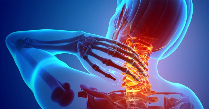 How a Chiropractor Can Help With Pinched Nerves