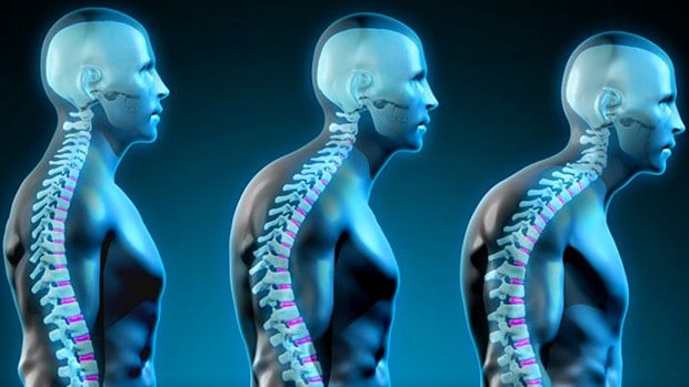 Why Good Posture Is Important For Your Health