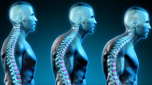 Por qué una buena postura es importante para su salud