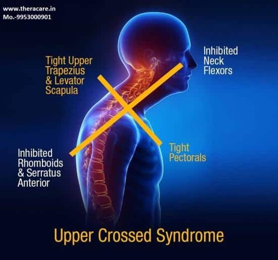 The Ins and Outs of Upper Crossed Syndrome