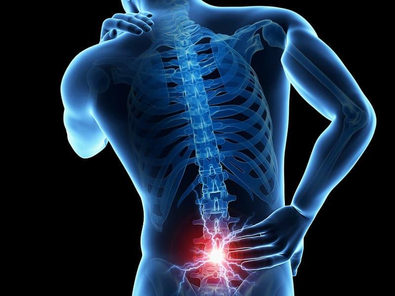 La clínica quiropráctica de South Charlotte trata el deslizamiento de disco para el manejo del dolor y los nervios pellizcados.