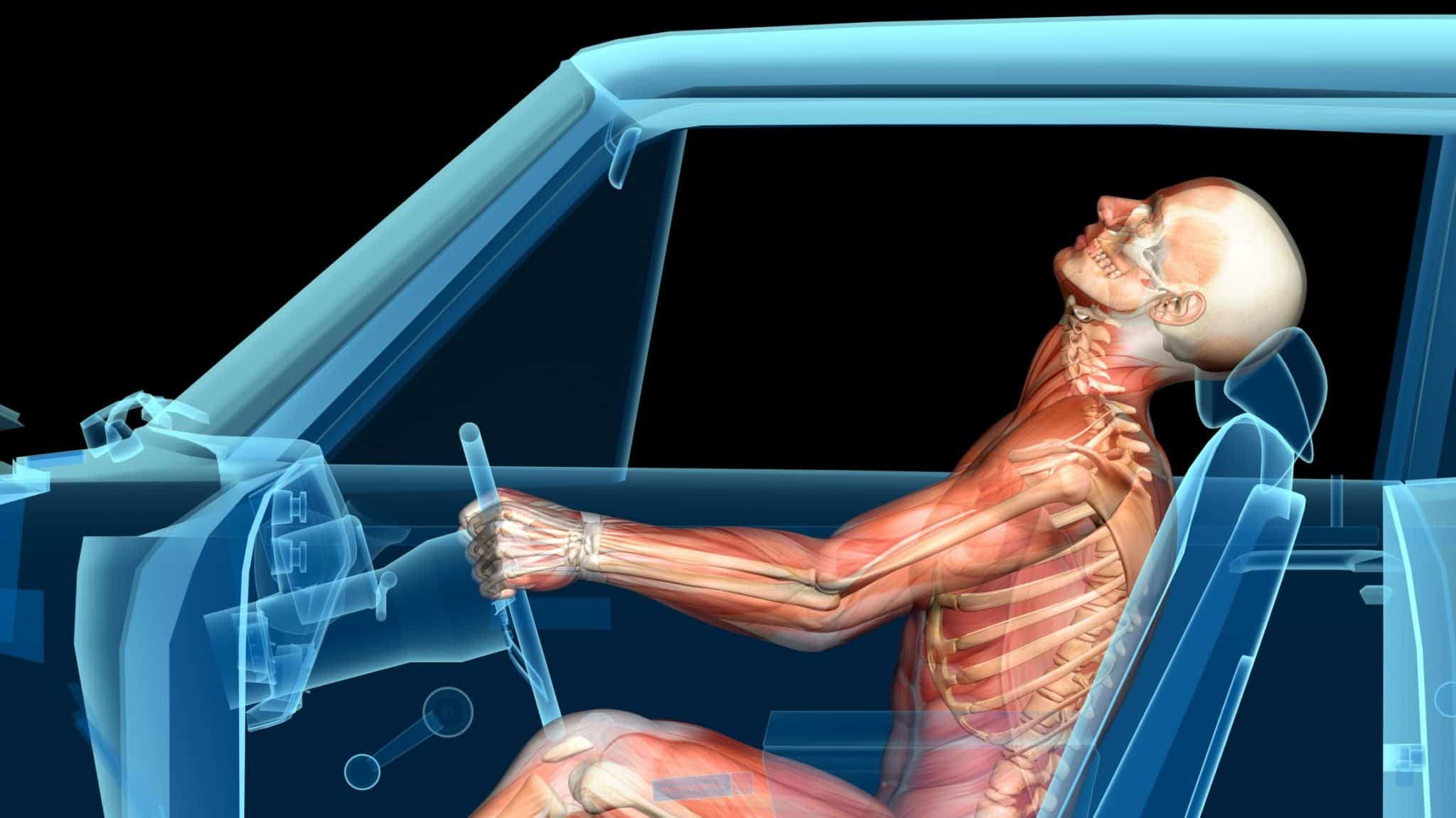 Tebby Chiropractic Clinic Helps Individuals With Whiplash From Automobile Accidents