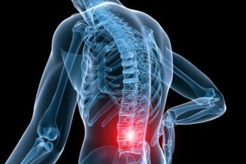 Chronic back pain relief in Charlotte NC is just a call away. Call 704-541-7111 Tebby Chiropractic and Sports Medicine Clinic is here to help with chronic back pain.