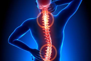 Chiropractors treat back pain in Charlotte NC