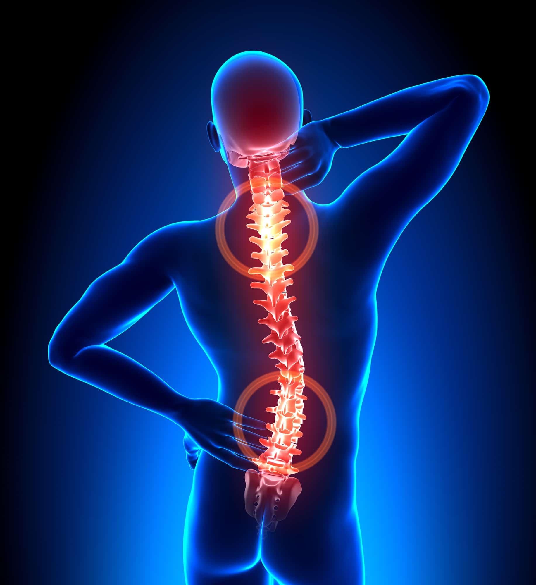 Los quiroprácticos le dicen que no ignore el dolor de espalda: este es el motivo