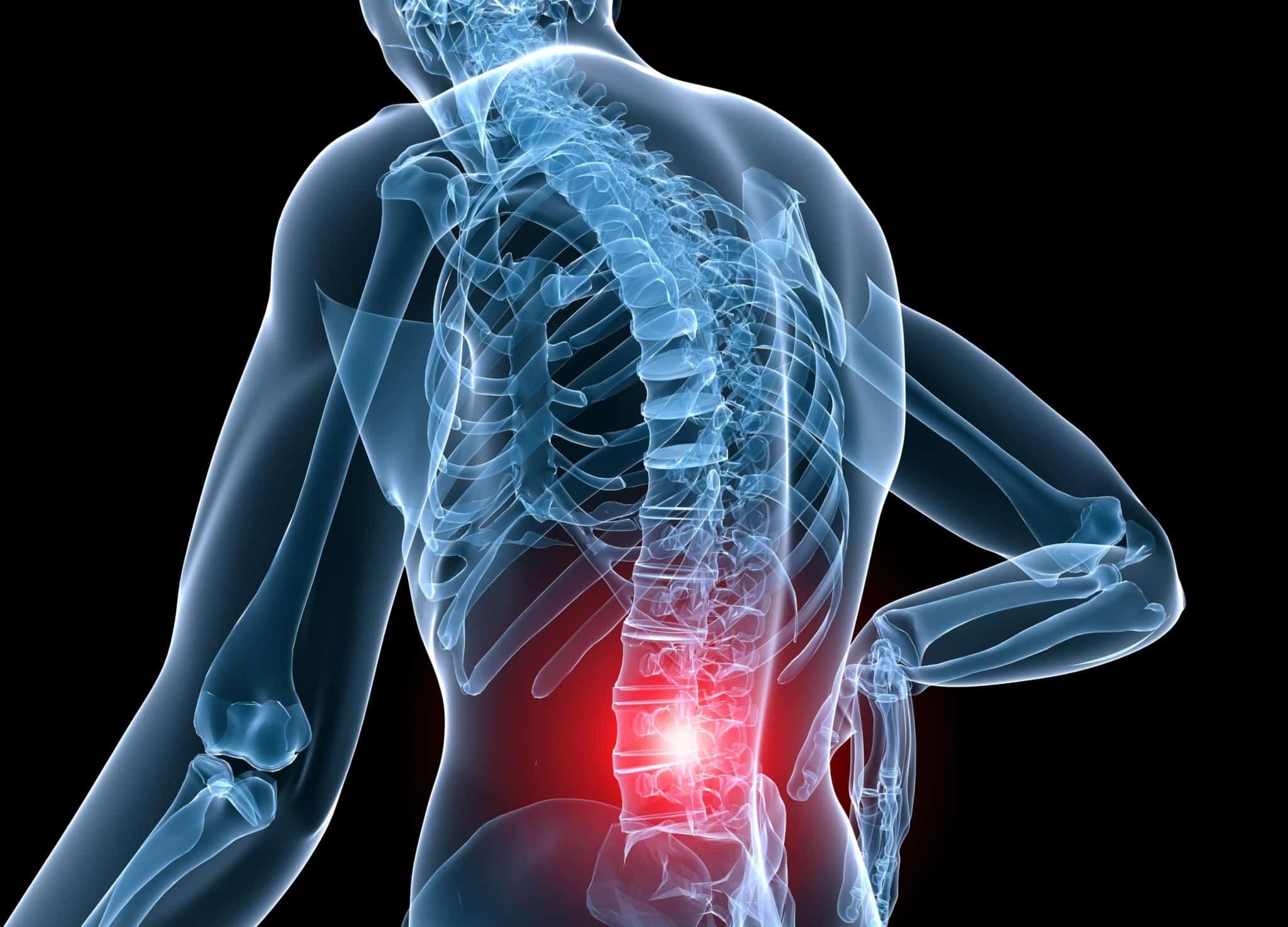 Cirugía para el dolor de espalda y problemas de columna: riesgos de los procedimientos quirúrgicos
