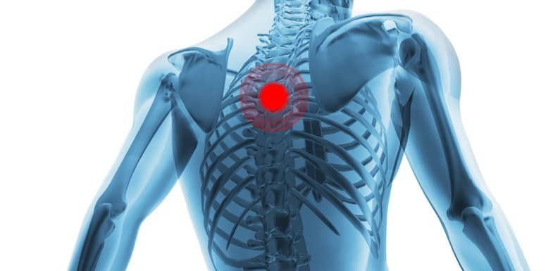 Upper Back Pain: How Chiropractic Can Help