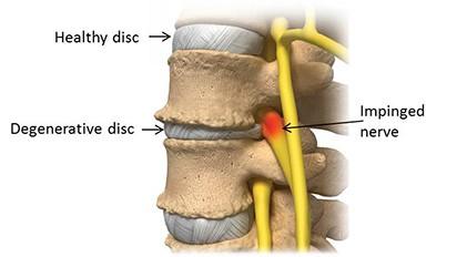 ¿Puede la atención quiropráctica ayudar a la enfermedad degenerativa del disco?
